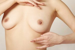 Symptoms and treatment of breast cancer
