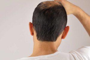 NeoGraft Hair Transplant